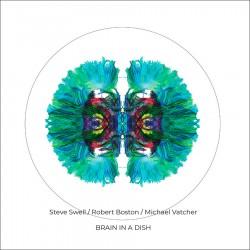 Brain in a Dish